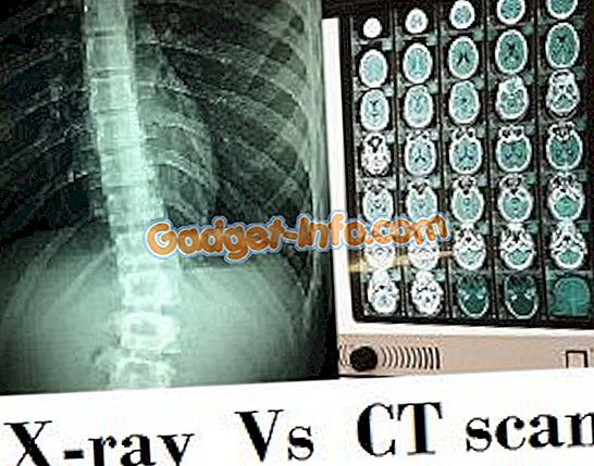 Разлика између рентгенског и ЦТ скенирања